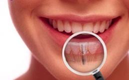 Understanding the cost of dental implants