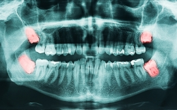 La gestion des dents de sagesse, une sage décision!